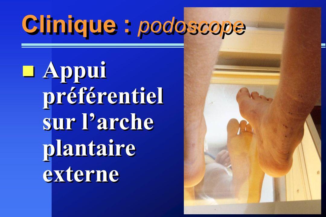 Clinique : podoscope Appui préférentiel sur larche plantaire externe