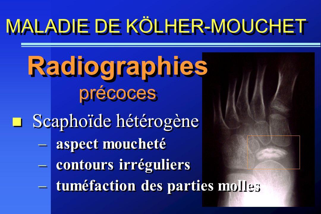 Scaphoïde hétérogène –aspect moucheté –contours irréguliers –tuméfaction des parties molles Scaphoïde hétérogène –aspect moucheté –contours irrégulier