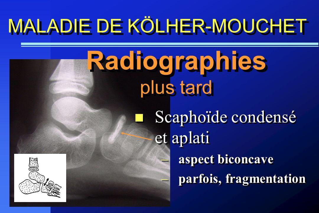 Scaphoïde condensé et aplati –aspect biconcave –parfois, fragmentation Scaphoïde condensé et aplati –aspect biconcave –parfois, fragmentation Radiogra