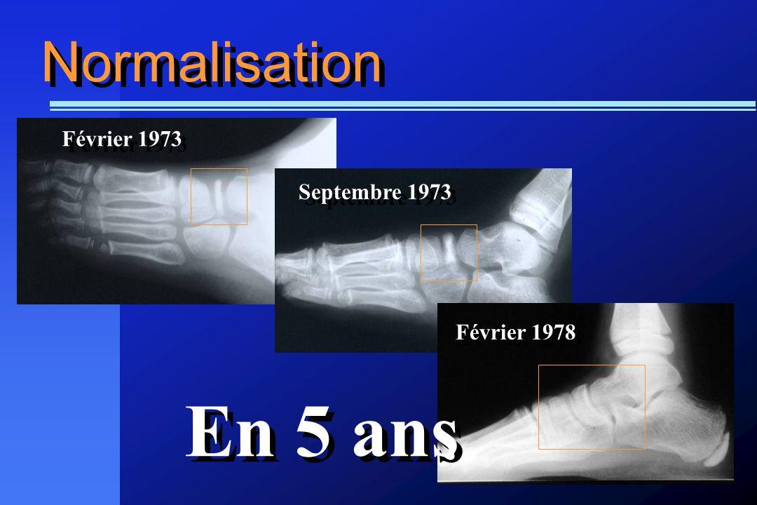 Normalisation Février 1973 Septembre 1973 Février 1978 En 5 ans