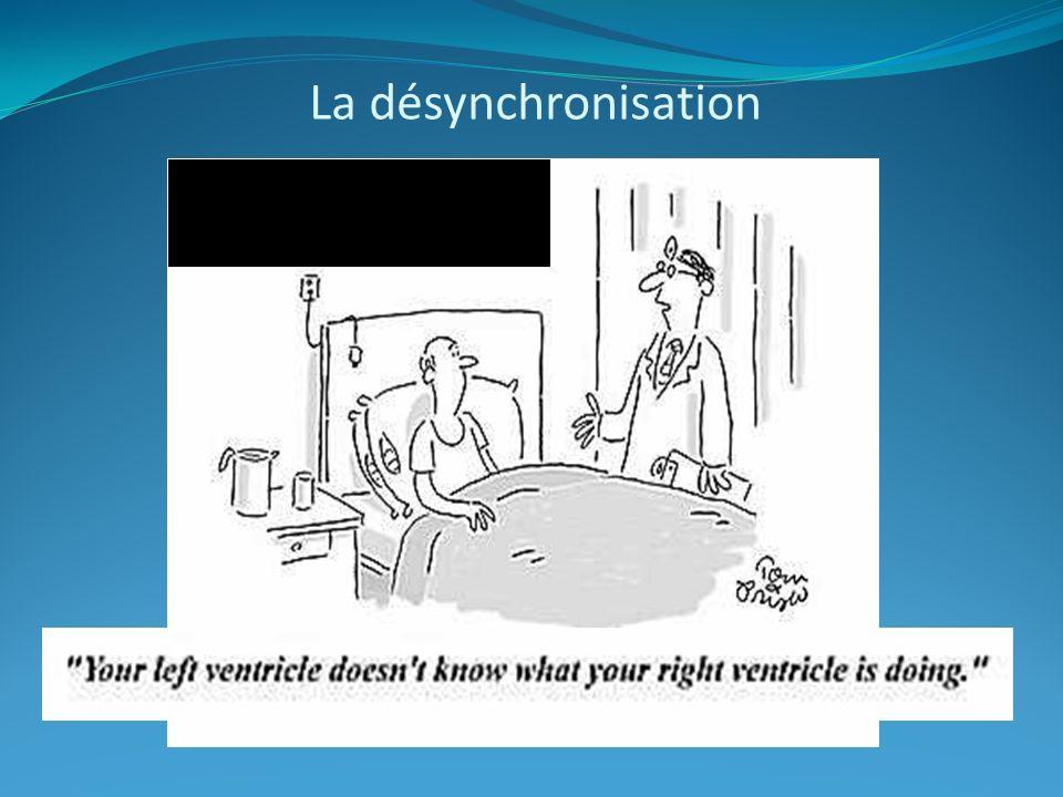 La désynchronisation