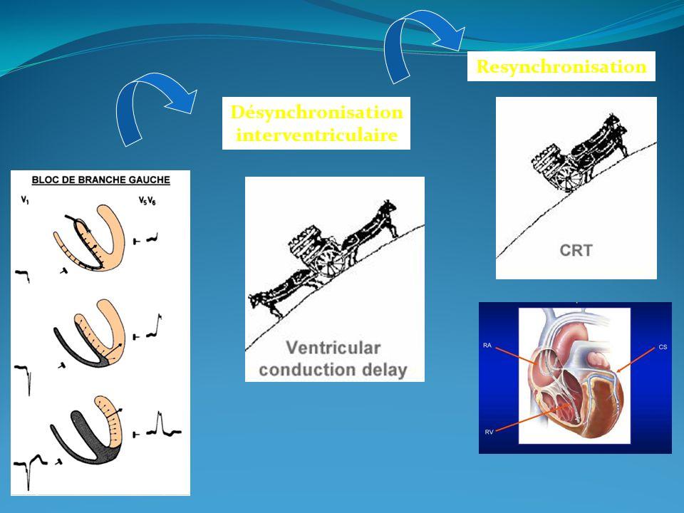 Désynchronisation interventriculaire Resynchronisation