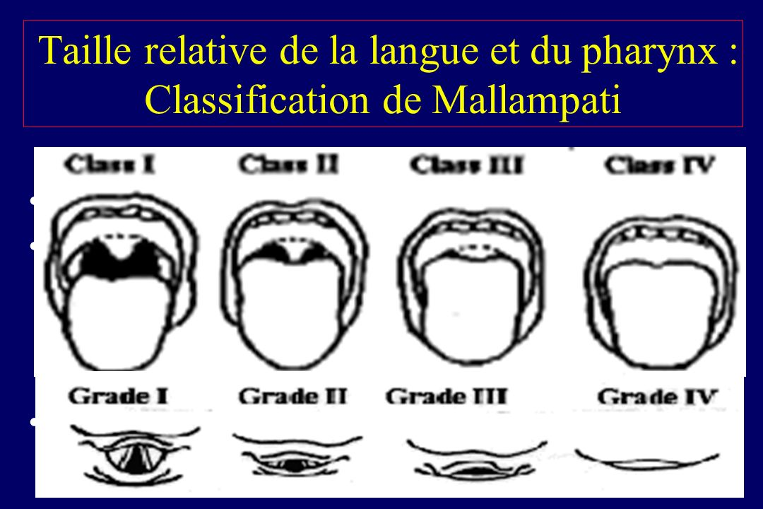 Taille relative de la langue et du pharynx : Classification de Mallampati Corrélée aux grades de Cormack & Lehane Examen simple en théorie .