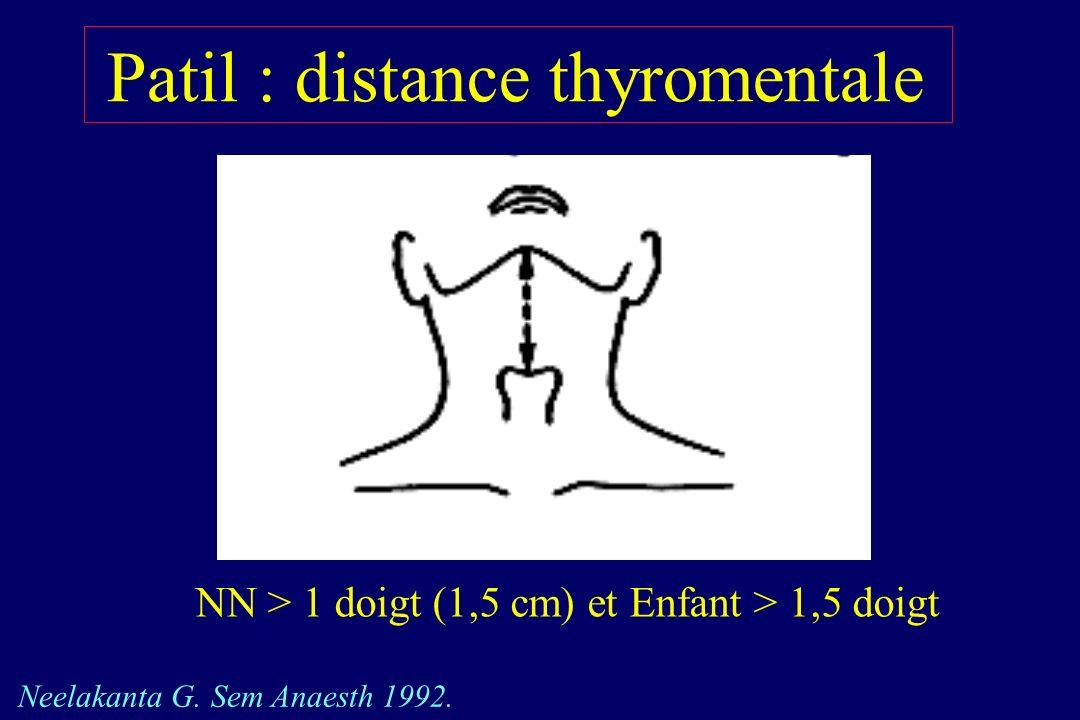 Patil : distance thyromentale NN > 1 doigt (1,5 cm) et Enfant > 1,5 doigt Neelakanta G. Sem Anaesth 1992.