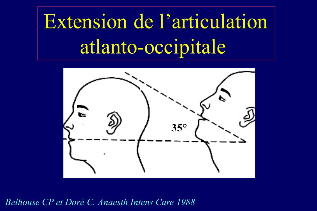 Extension de larticulation atlanto-occipitale 35° Belhouse CP et Doré C. Anaesth Intens Care 1988