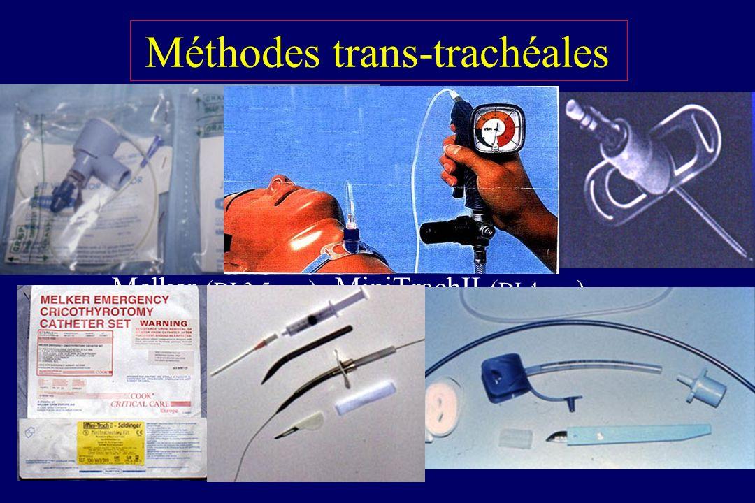 Cricothyroïdotomie (méthode de Seldinger) – CI chez NRS et difficile chez NN (mb crico : 3 mm) – Melker ( DI 3,5 mm ), MiniTrachII ( DI 4 mm ) Trachéo