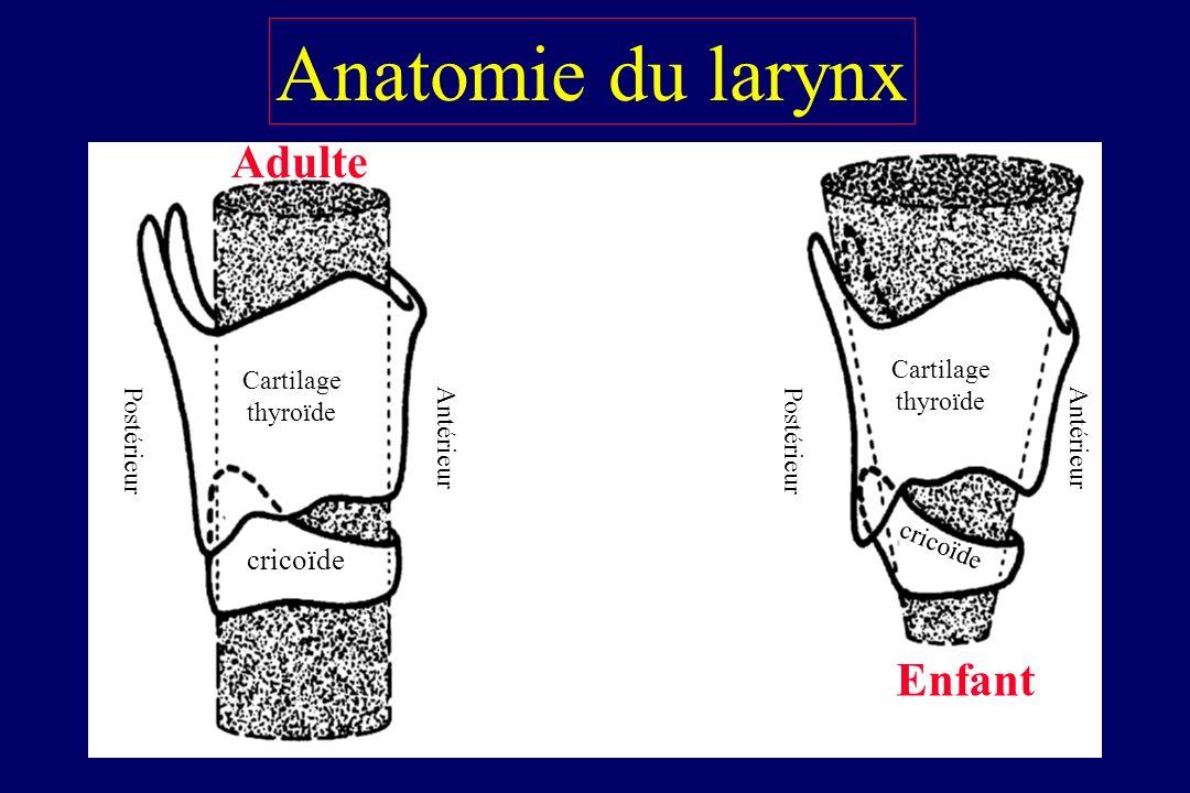 Vision des cordes vocales rendue difficile par : 1) larynx antérieur 2) incisives supérieures proéminentes 3) macroglossie