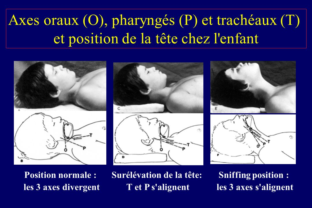 Axes oraux (O), pharyngés (P) et trachéaux (T) et position de la tête chez l'enfant Position normale : les 3 axes divergent Surélévation de la tête: T