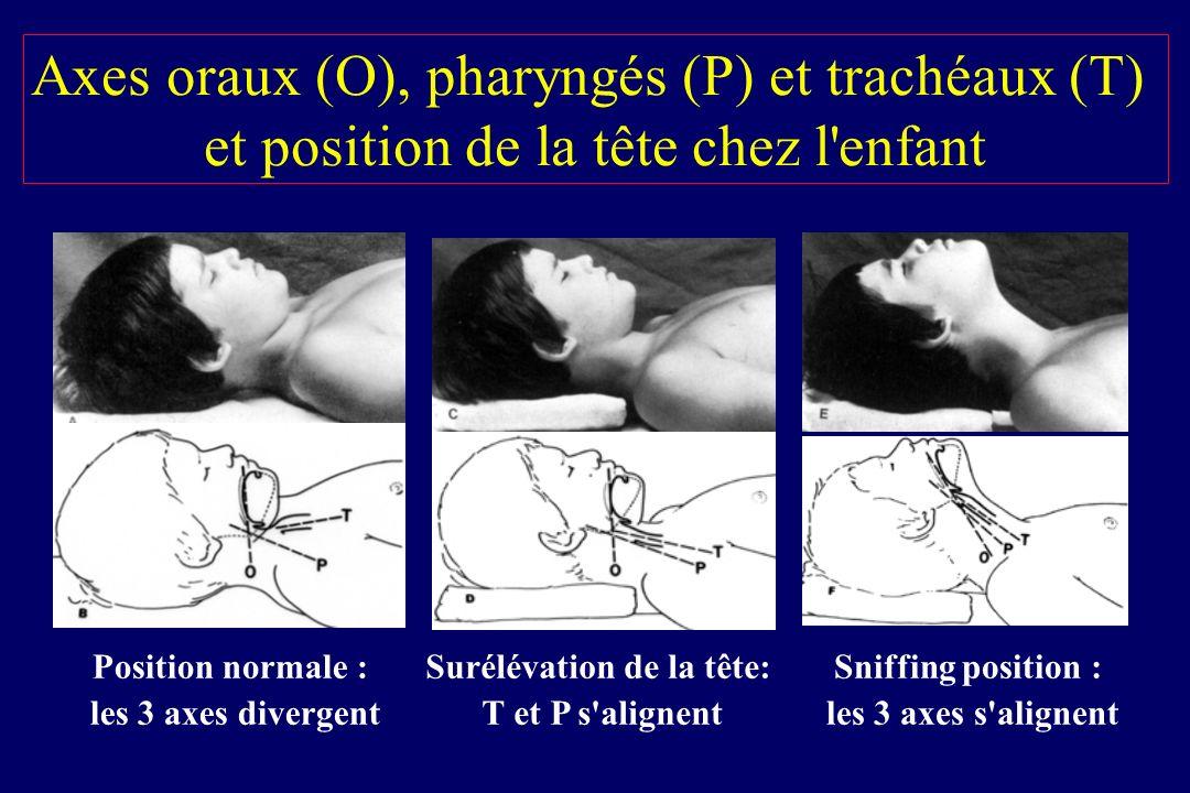Petits moyens associés à la laryngoscopie Pression externe du cricoïde Mobilisation du larynx : BURP Stylet malléable Trans-illumination : lightwand Enfants < 10 kg : échec 25 % Fisher.