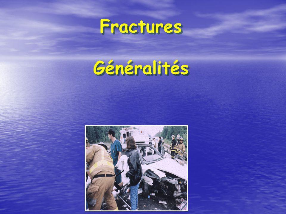 Quels sont les 5 éléments permettant de décrire une fracture .