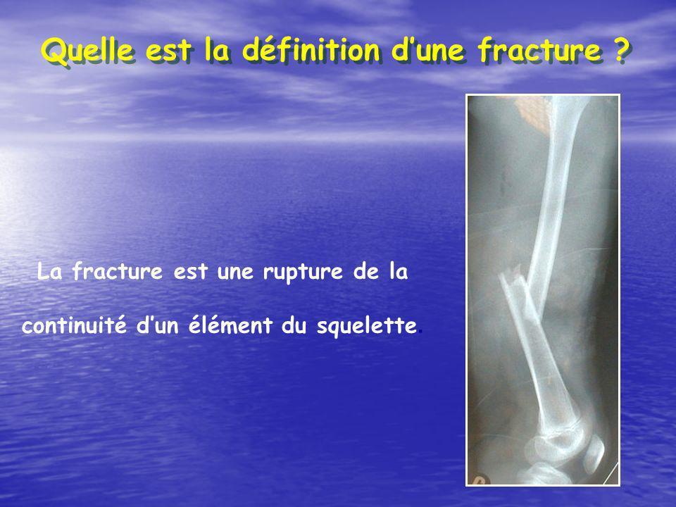 Quelle est la définition dune fracture ? La fracture est une rupture de la continuité dun élément du squelette.