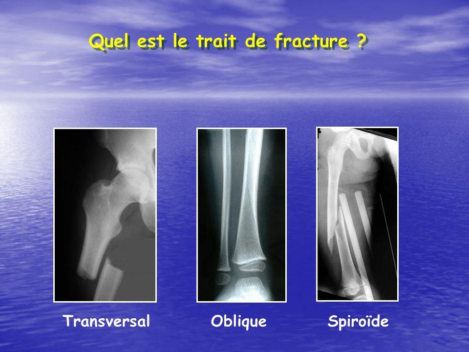 TransversalObliqueSpiroïde Quel est le trait de fracture ?