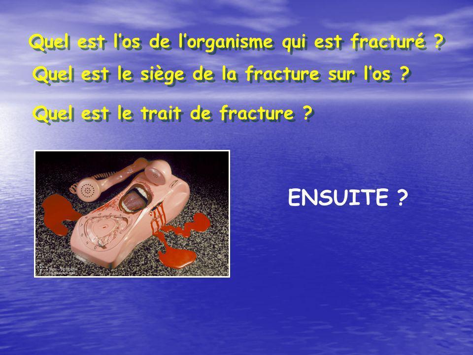 ENSUITE ? Quel est los de lorganisme qui est fracturé ? Quel est le siège de la fracture sur los ? Quel est le trait de fracture ?
