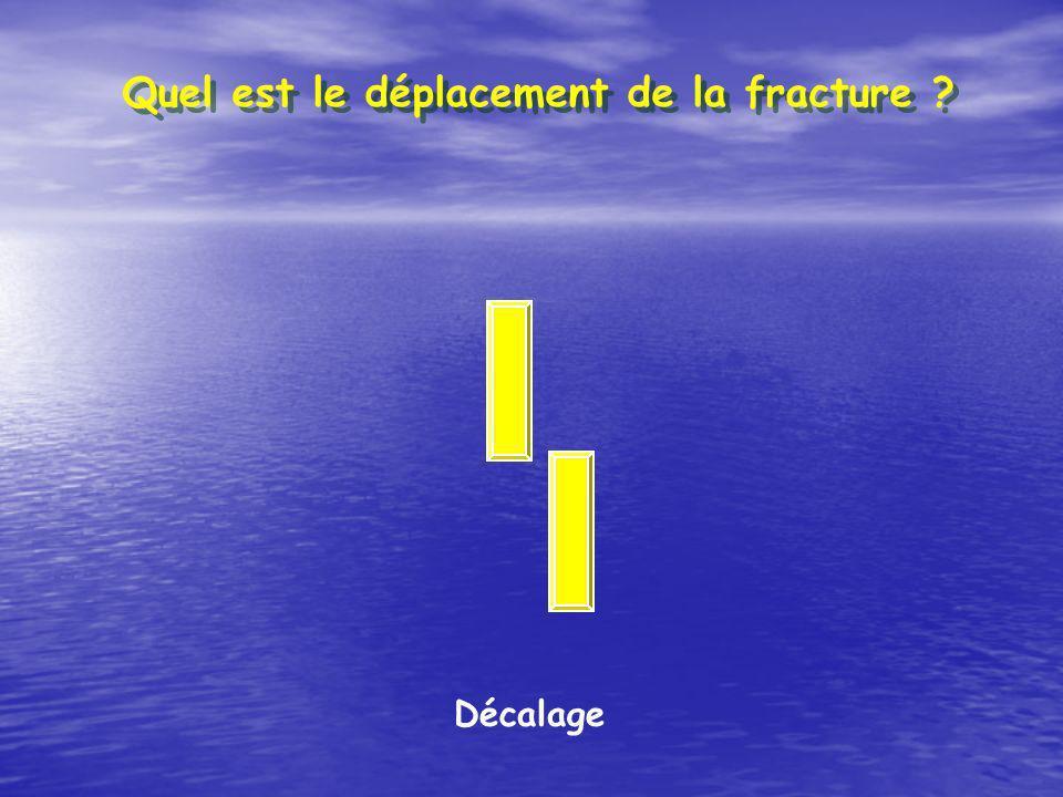 Décalage Quel est le déplacement de la fracture ?