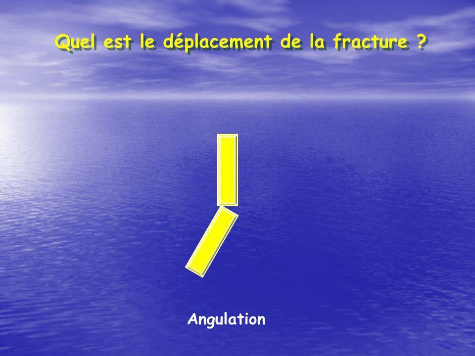 Angulation Quel est le déplacement de la fracture ?