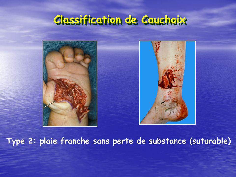 Classification de Cauchoix Type 2: plaie franche sans perte de substance (suturable)