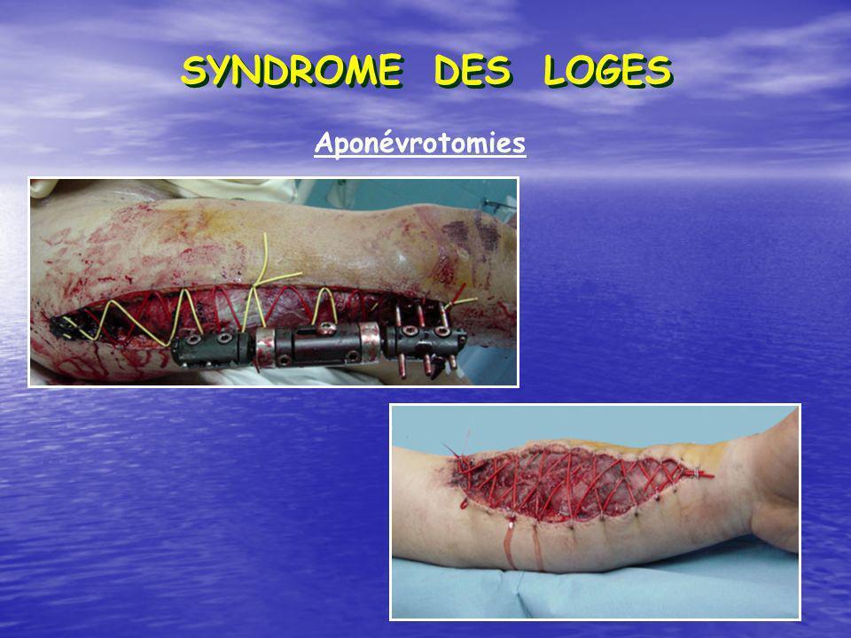 Aponévrotomies SYNDROME DES LOGES