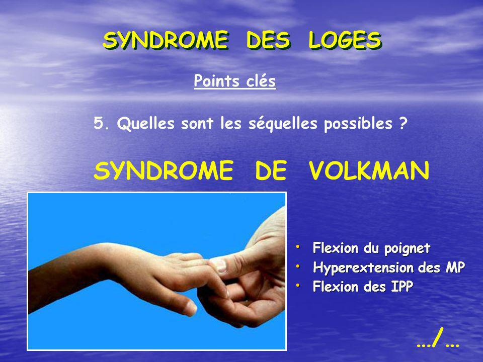 Points clés 5. Quelles sont les séquelles possibles ? SYNDROME DE VOLKMAN Flexion du poignet Flexion du poignet Hyperextension des MP Hyperextension d