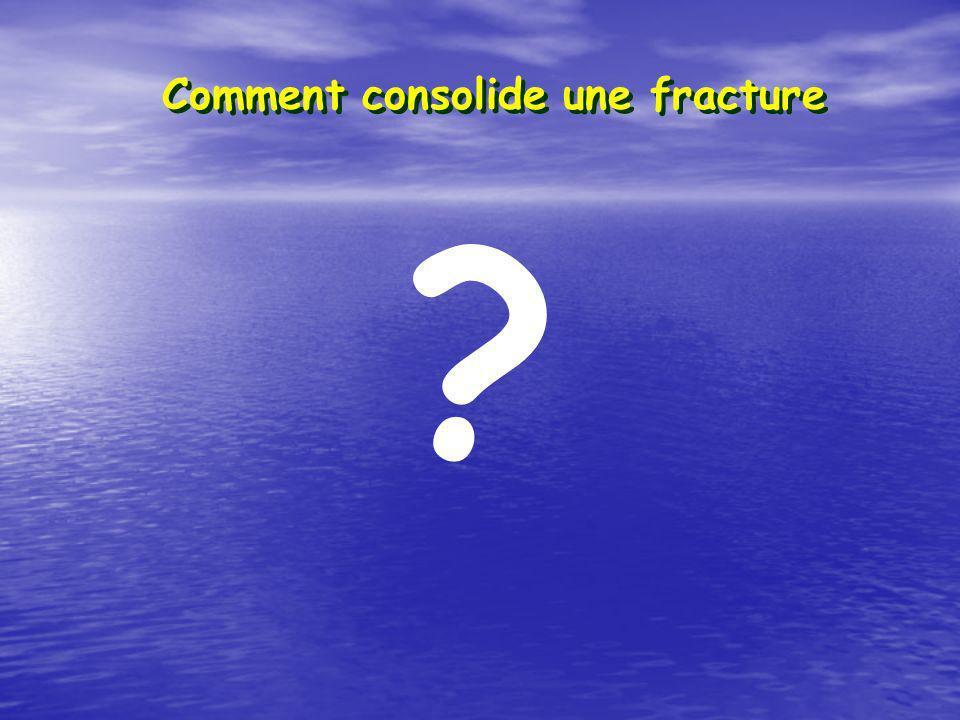Comment consolide une fracture ?