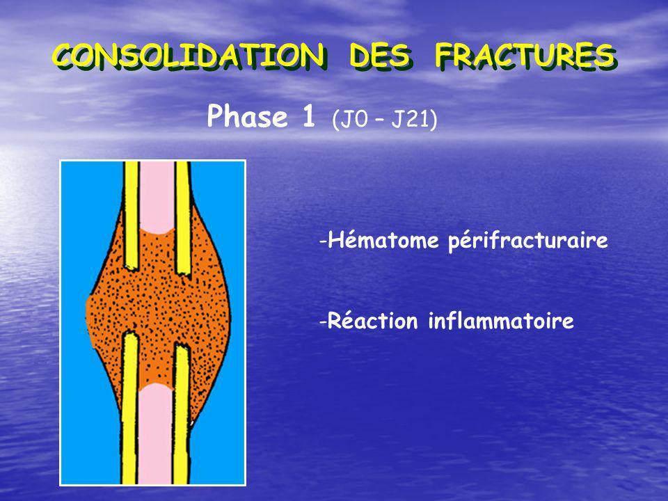 CONSOLIDATION DES FRACTURES Phase 1 (J0 – J21) -Hématome périfracturaire -Réaction inflammatoire