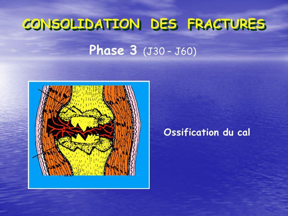 Phase 3 (J30 – J60) Ossification du cal CONSOLIDATION DES FRACTURES