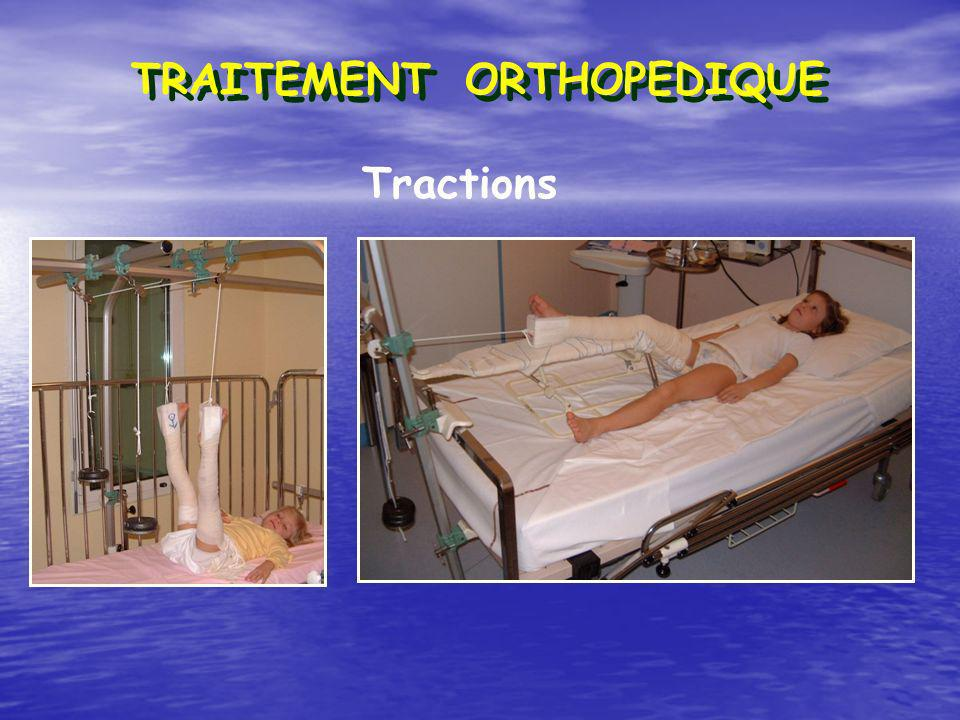 Tractions TRAITEMENT ORTHOPEDIQUE