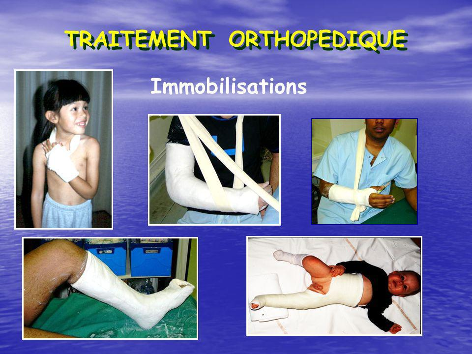 Immobilisations TRAITEMENT ORTHOPEDIQUE