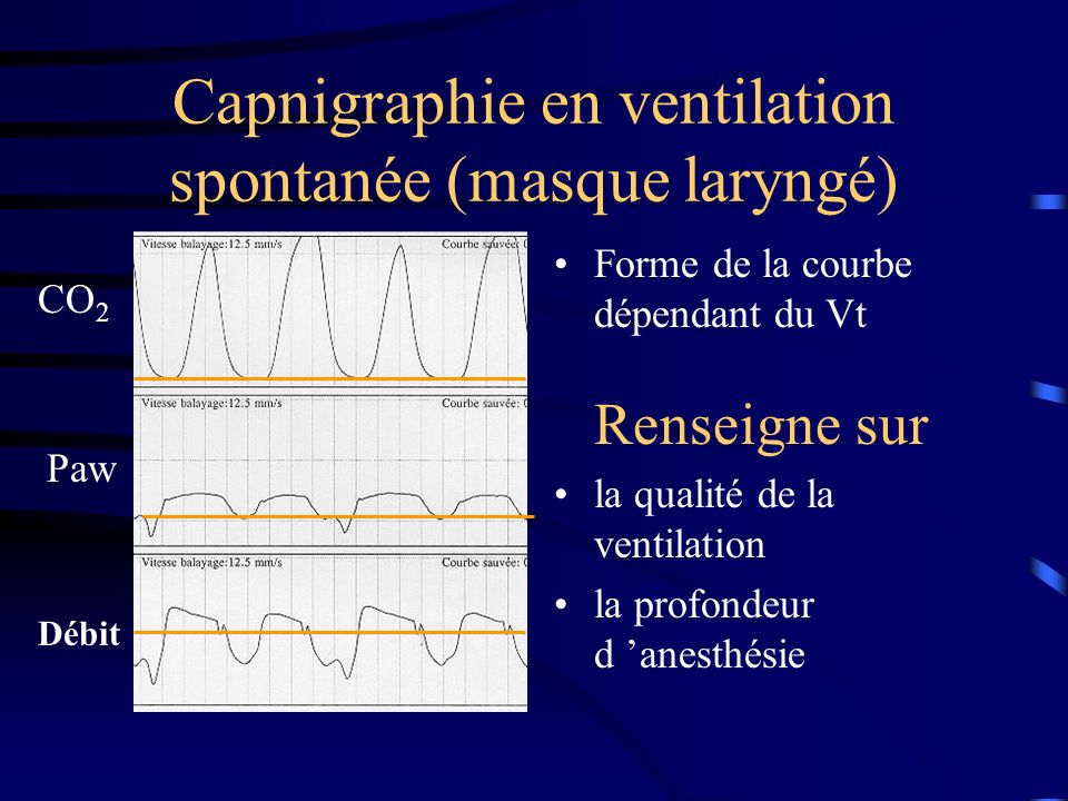 Capnigraphie en ventilation spontanée (masque laryngé) Forme de la courbe dépendant du Vt Renseigne sur la qualité de la ventilation la profondeur d a