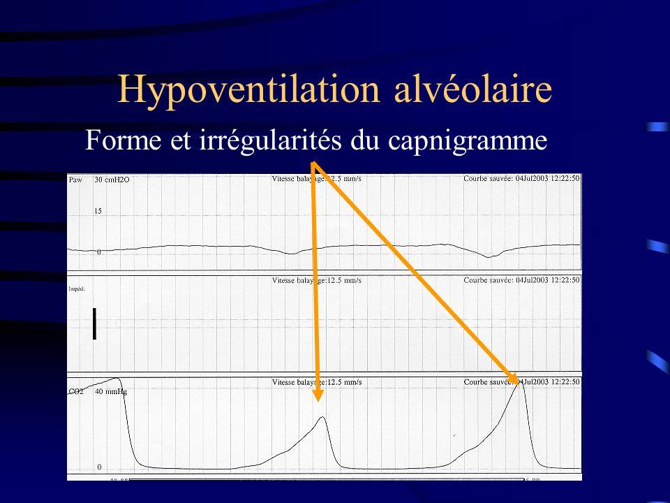 Hypoventilation alvéolaire Forme et irrégularités du capnigramme