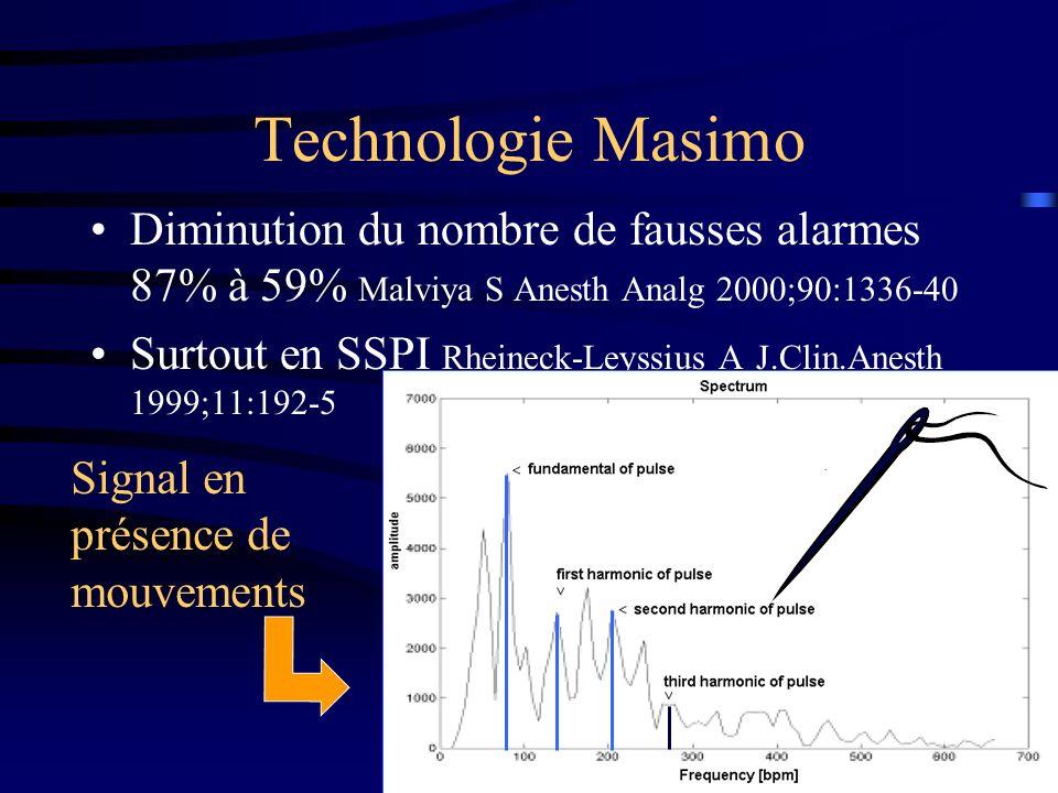 Technologie Masimo Diminution du nombre de fausses alarmes 87% à 59% Malviya S Anesth Analg 2000;90:1336-40 Surtout en SSPI Rheineck-Leyssius A J.Clin