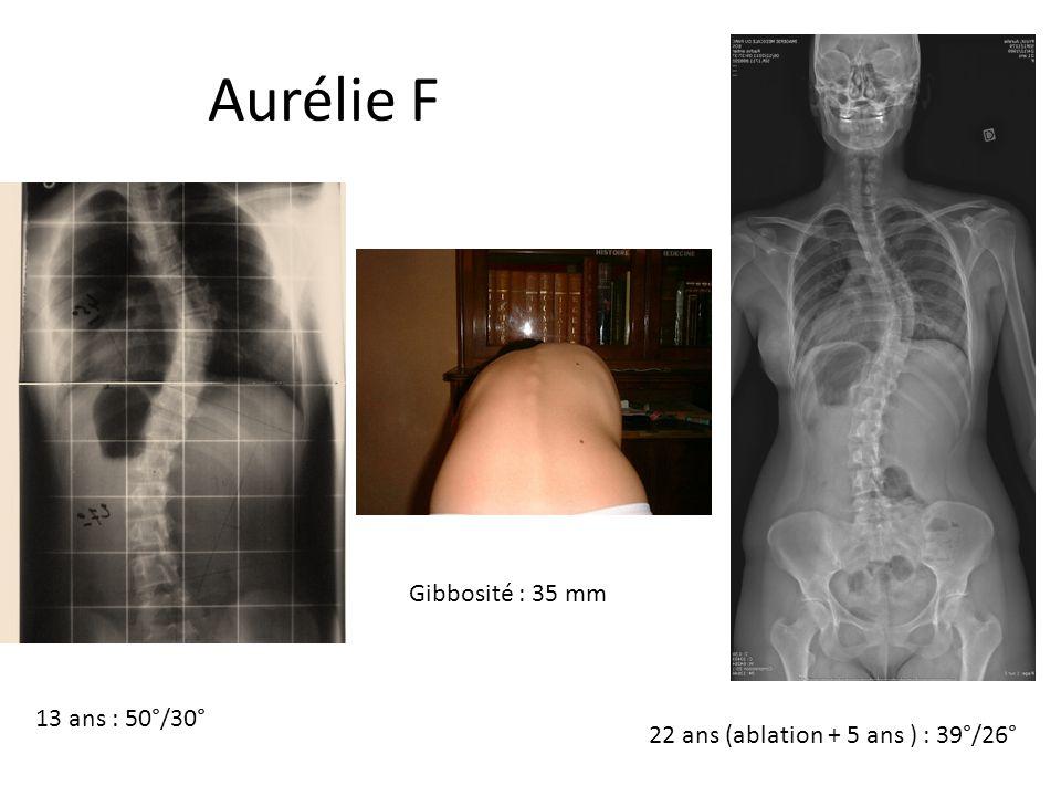 Aurélie Frizot 13 ans : 50°/30° Gibbosité : 35 mm 22 ans (ablation + 5 ans ) : 39°/26°