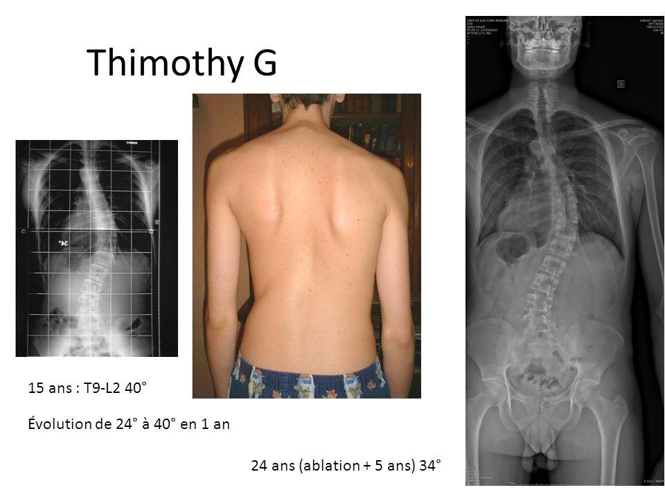 Thimothy Garnier 15 ans : T9-L2 40° 24 ans (ablation + 5 ans) 34° Évolution de 24° à 40° en 1 an