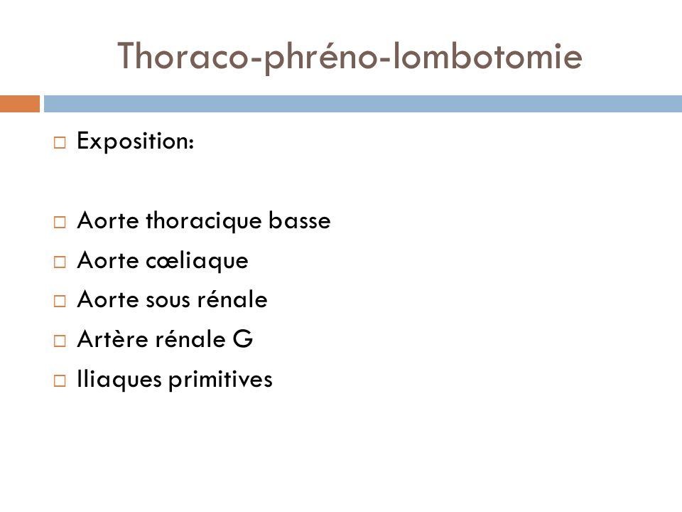Exposition: Aorte thoracique basse Aorte cœliaque Aorte sous rénale Artère rénale G Iliaques primitives