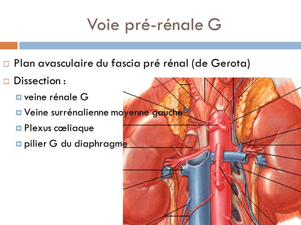 Voie pré-rénale G Plan avasculaire du fascia pré rénal (de Gerota) Dissection : veine rénale G Veine surrénalienne moyenne gauche Plexus cœliaque pili