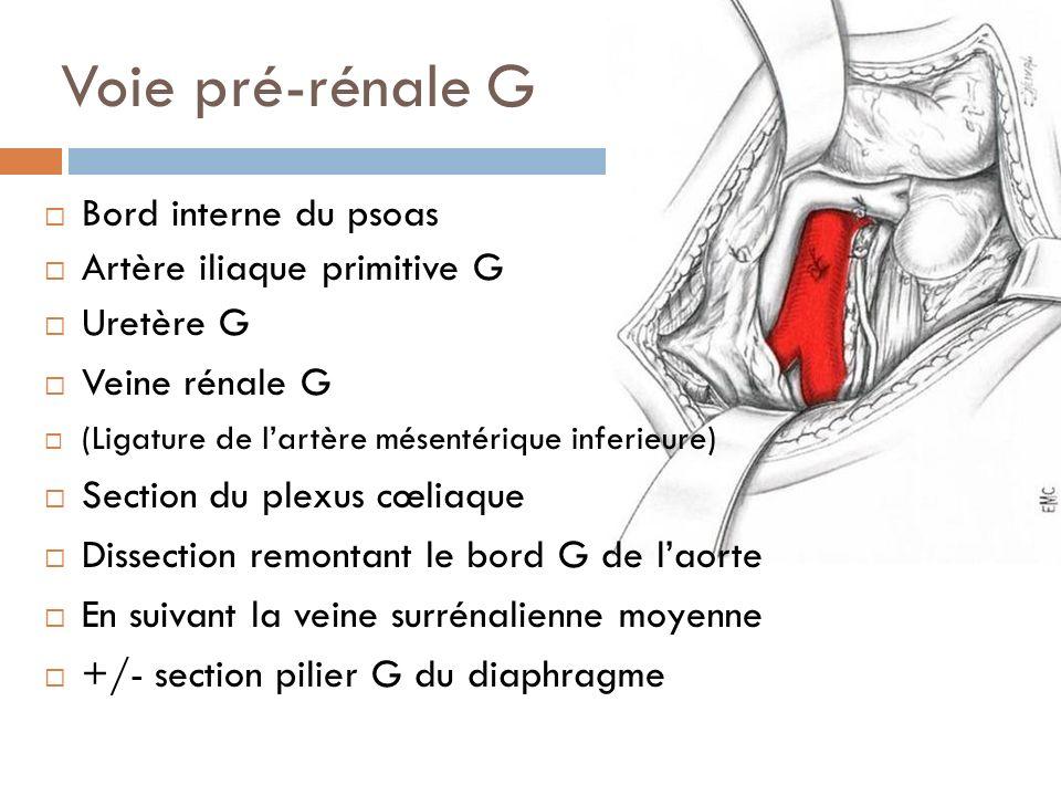 Voie pré-rénale G Bord interne du psoas Artère iliaque primitive G Uretère G Veine rénale G (Ligature de lartère mésentérique inferieure) Section du p