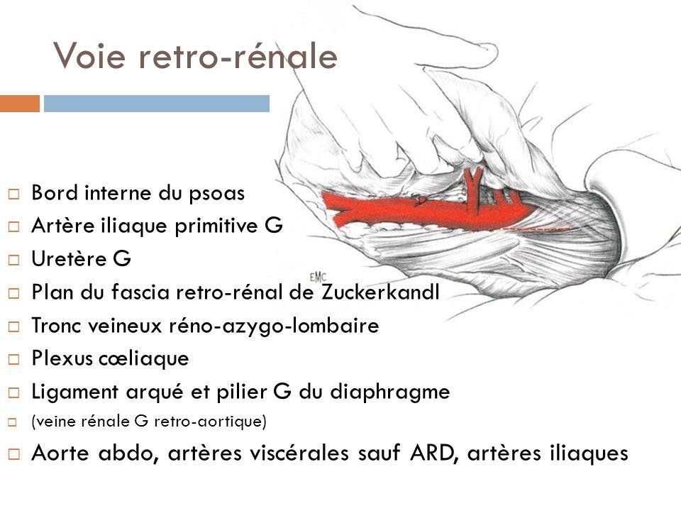 Voie retro-rénale Bord interne du psoas Artère iliaque primitive G Uretère G Plan du fascia retro-rénal de Zuckerkandl Tronc veineux réno-azygo-lombai