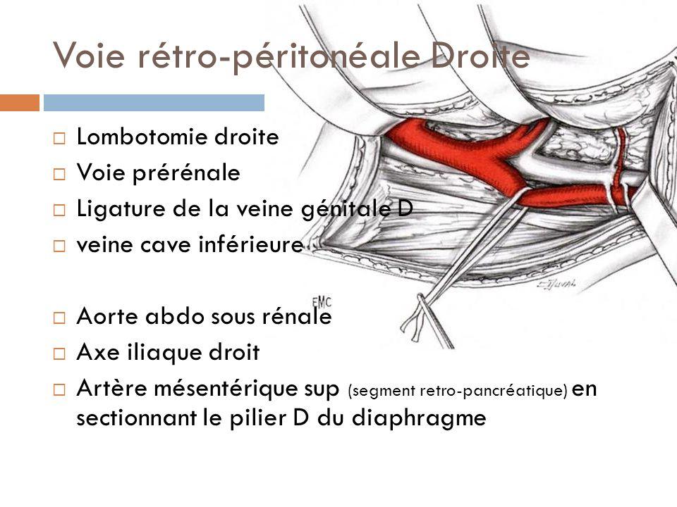 Voie rétro-péritonéale Droite Lombotomie droite Voie prérénale Ligature de la veine génitale D veine cave inférieure Aorte abdo sous rénale Axe iliaqu