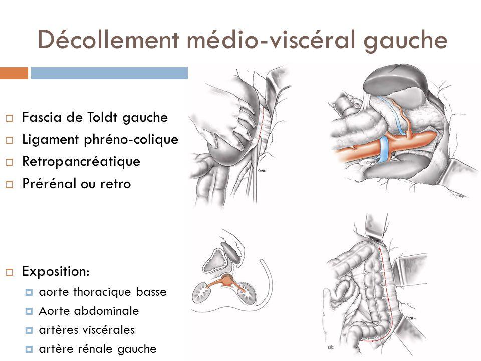 Décollement médio-viscéral gauche Fascia de Toldt gauche Ligament phréno-colique Retropancréatique Prérénal ou retro Exposition: aorte thoracique bass