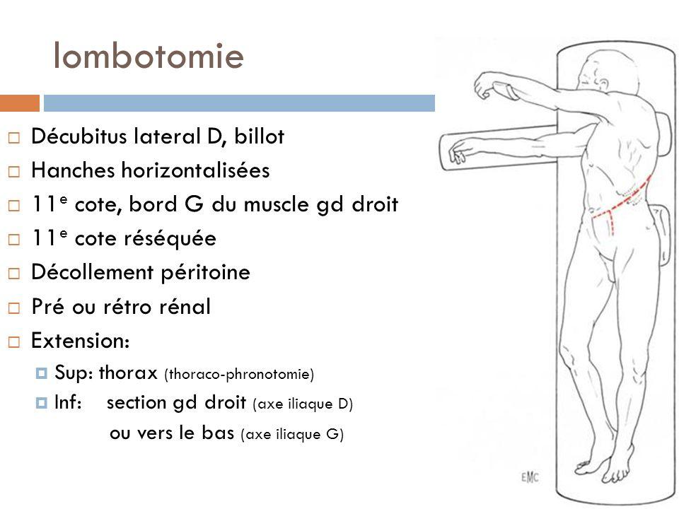 lombotomie Décubitus lateral D, billot Hanches horizontalisées 11 e cote, bord G du muscle gd droit 11 e cote réséquée Décollement péritoine Pré ou ré