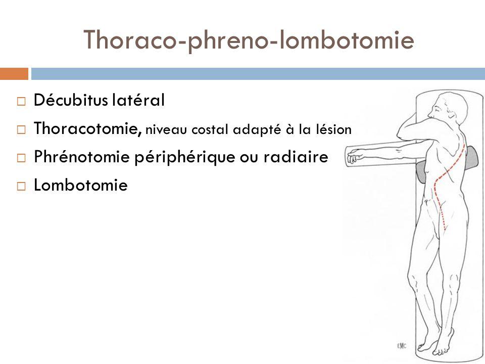Thoraco-phreno-lombotomie Décubitus latéral Thoracotomie, niveau costal adapté à la lésion Phrénotomie périphérique ou radiaire Lombotomie
