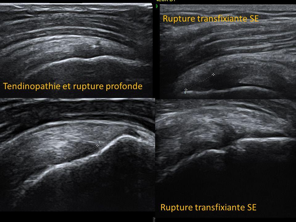Tendinopathie et rupture profonde Rupture transfixiante SE