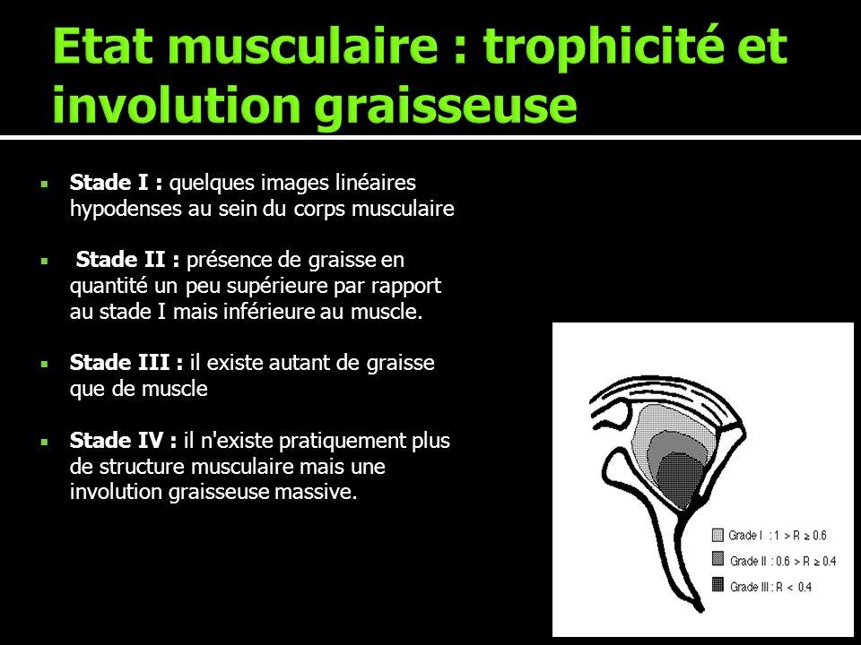 Stade I : quelques images linéaires hypodenses au sein du corps musculaire Stade II : présence de graisse en quantité un peu supérieure par rapport au