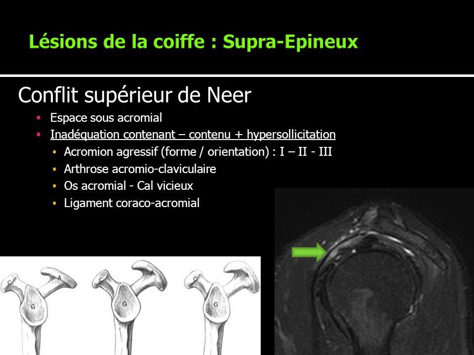 Conflit supérieur de Neer Espace sous acromial Inadéquation contenant – contenu + hypersollicitation Acromion agressif (forme / orientation) : I – II