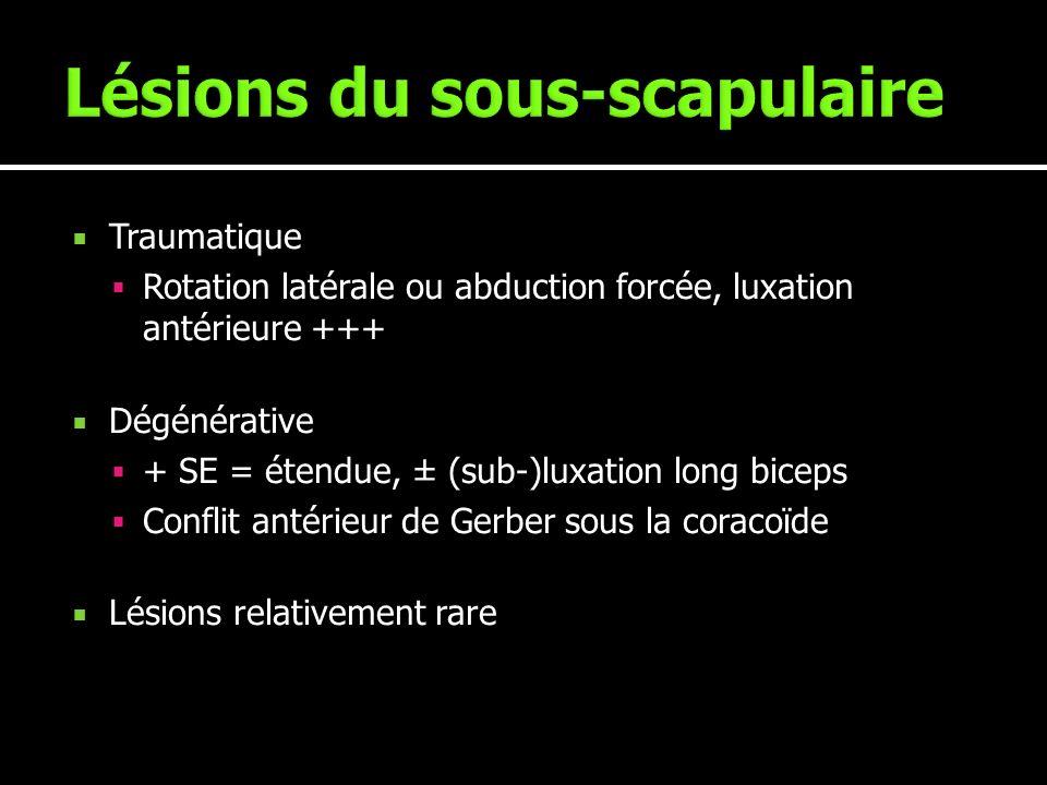 Traumatique Rotation latérale ou abduction forcée, luxation antérieure +++ Dégénérative + SE = étendue, ± (sub-)luxation long biceps Conflit antérieur
