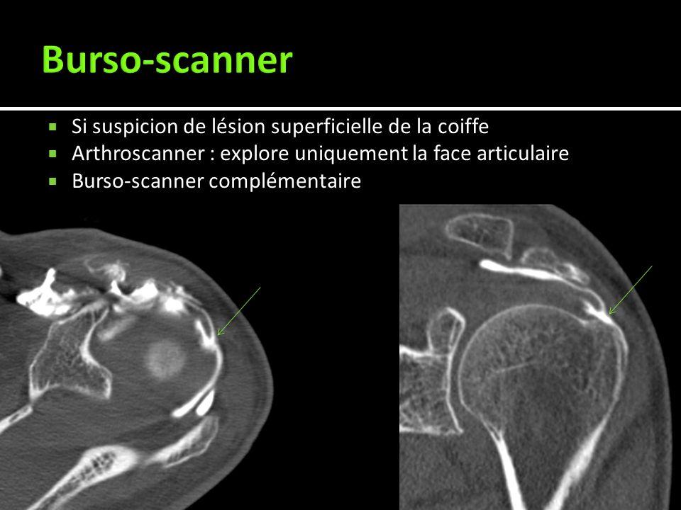 Si suspicion de lésion superficielle de la coiffe Arthroscanner : explore uniquement la face articulaire Burso-scanner complémentaire