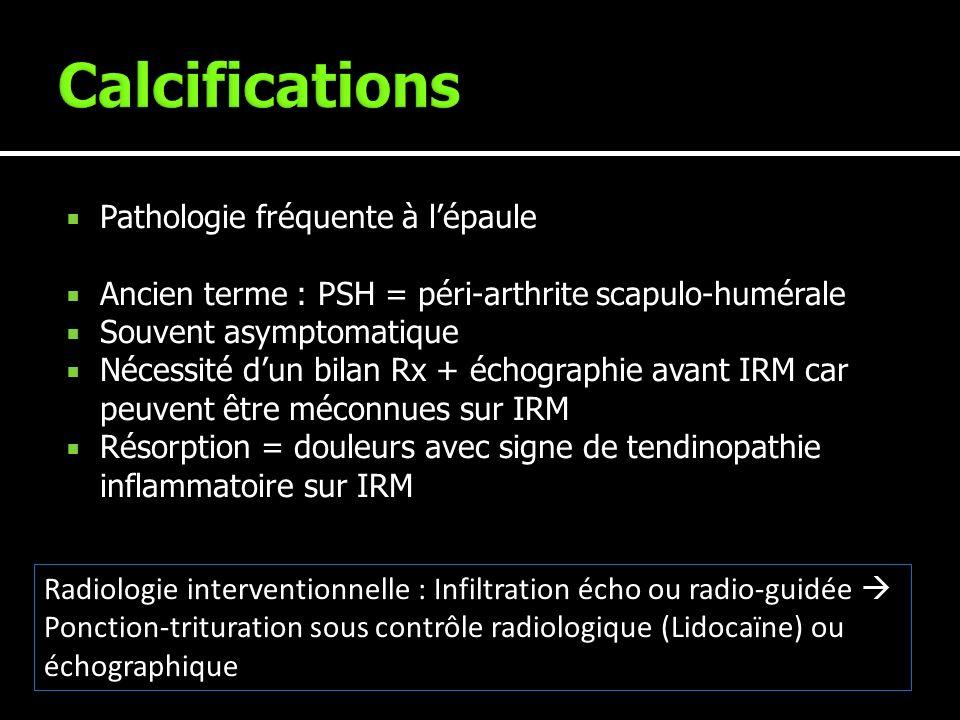 Pathologie fréquente à lépaule Ancien terme : PSH = péri-arthrite scapulo-humérale Souvent asymptomatique Nécessité dun bilan Rx + échographie avant I