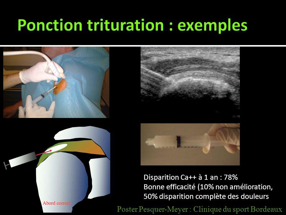 Disparition Ca++ à 1 an : 78% Bonne efficacité (10% non amélioration, 50% disparition complète des douleurs Poster Pesquer-Meyer : Clinique du sport B