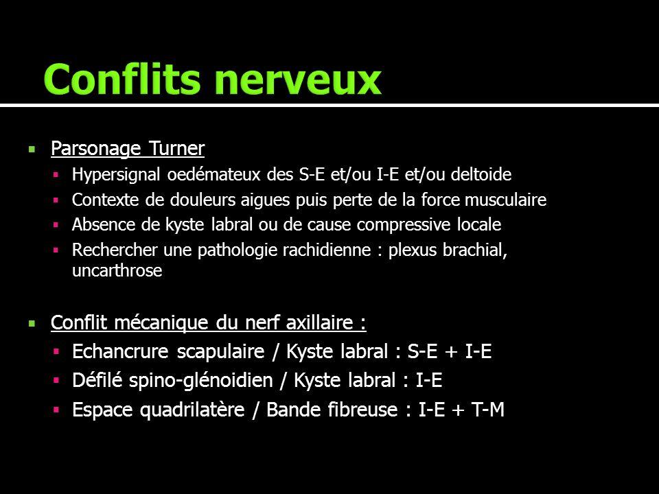 Parsonage Turner Hypersignal oedémateux des S-E et/ou I-E et/ou deltoide Contexte de douleurs aigues puis perte de la force musculaire Absence de kyst