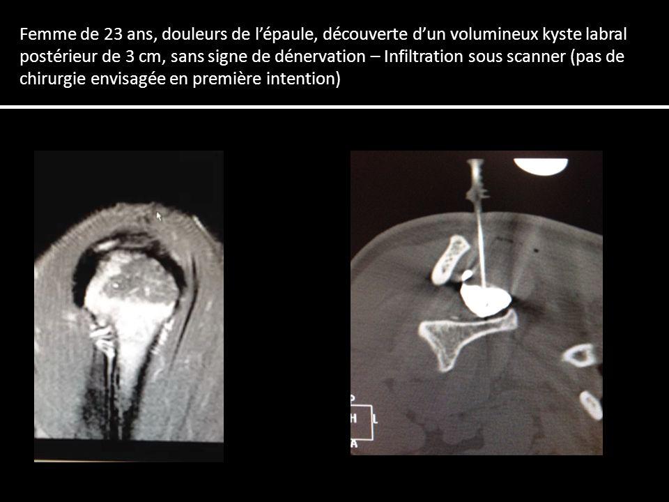 Femme de 23 ans, douleurs de lépaule, découverte dun volumineux kyste labral postérieur de 3 cm, sans signe de dénervation – Infiltration sous scanner