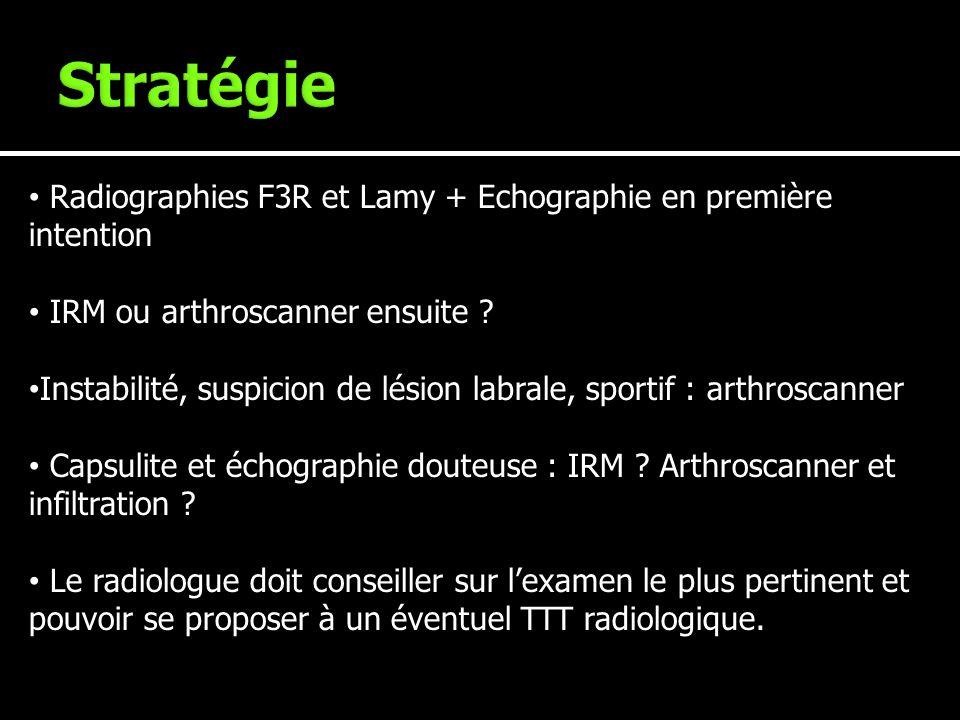 Radiographies F3R et Lamy + Echographie en première intention IRM ou arthroscanner ensuite ? Instabilité, suspicion de lésion labrale, sportif : arthr